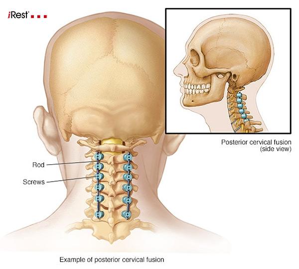 بررسی سریع آناتومی ستون فقرات گردن