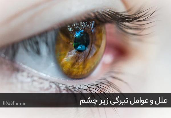 عوامل تیرگی زیر چشم