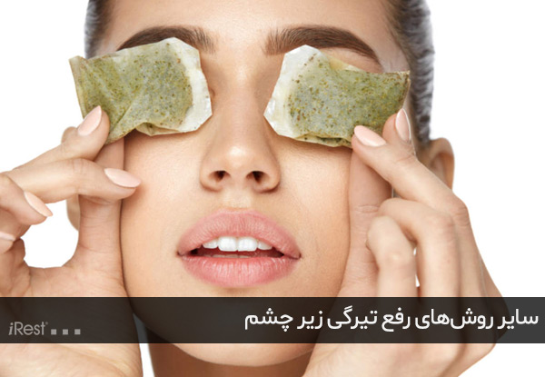 سایر روشهای رفع تیرگی زیر چشم